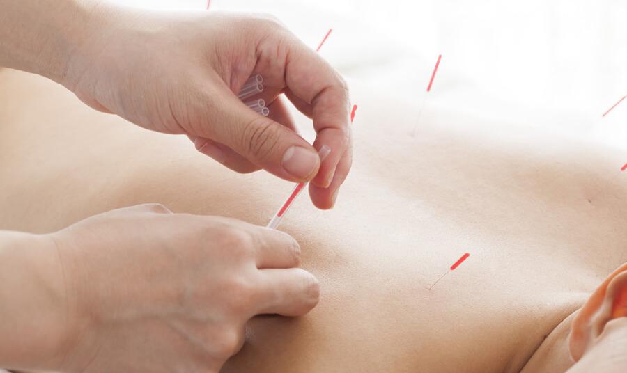 鍼灸とは、患部やツボに刺激を与えることで病気やけがの改善を目指す治療方法です